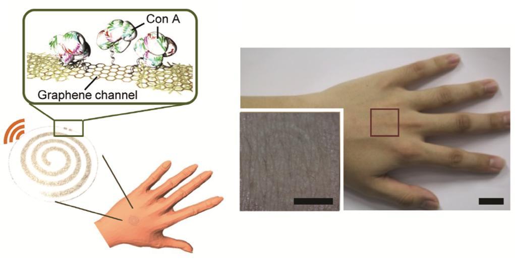 그래핀-금속 나노와이어 하이브리드 구조를 이용해 제작한 투명한 웨어러블 무선 스마트 센서가 손등에 부착된 모습이다. 이 센서는 오른쪽에 보이는 것처럼 손등에 붙여도 보이지 않을 정도로 투명하며, 잡아당기거나 구겨도 전기적 특성이 유지된다. 왼쪽 위 그림에서 Con-A는 이번 실험에서 활용한 단백질의 이름이다. 그래핀이 Con-A 단백질을 감지하면 저항이 달라지고, 이 정보를 안테나를 통해 전달하게 된다.