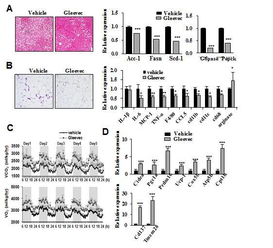지방간의 변화를 비교한 결과 글리벡을 투여한 생쥐의 간에서 지방 축적이 현저히 줄어든 것을 확인할 수 있었다.(A) 지방조직의 염증이 발생했는지 여부를 확인한 결과도 글리벡을 투여한 쥐에서 염증성 인자가 적었다.(B) | 자료: 최장현 교수팀