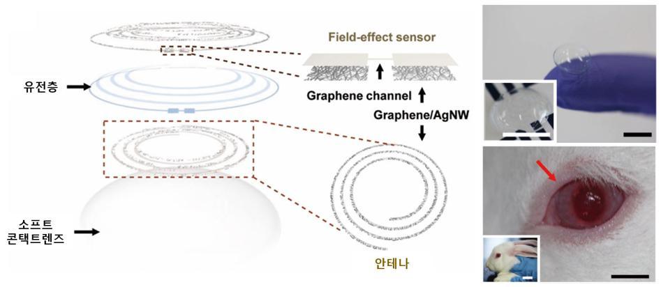 왼쪽은 소프트 콘택트렌즈 위에 투명 안압센서와 혈당센서가 적용된 모습이고, 오른쪽은 이 센서가 적용된 콘택트렌즈를 착용한 토끼 사진이다.