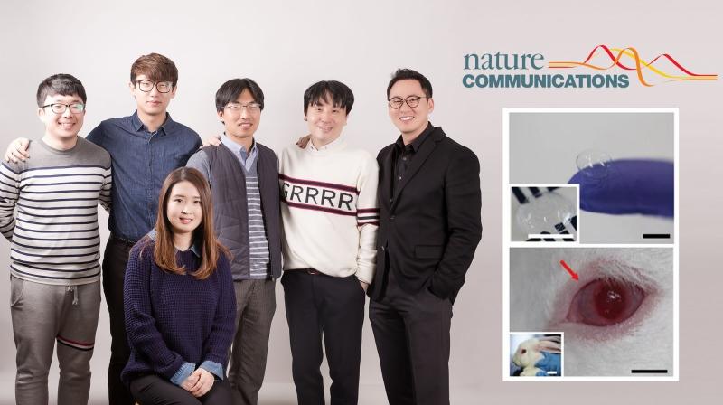 스마트 콘택트렌즈를 개발한 연구진의 모습. 앞줄에 앉은 사람이 김주희 연구원이고 뒷줄은 왼쪽부터 박지훈 연구원, 지상윤 연구원, 이창영 교수, 박장웅 교수, 변영재 교수의 모습이다. | 사진: 김경채