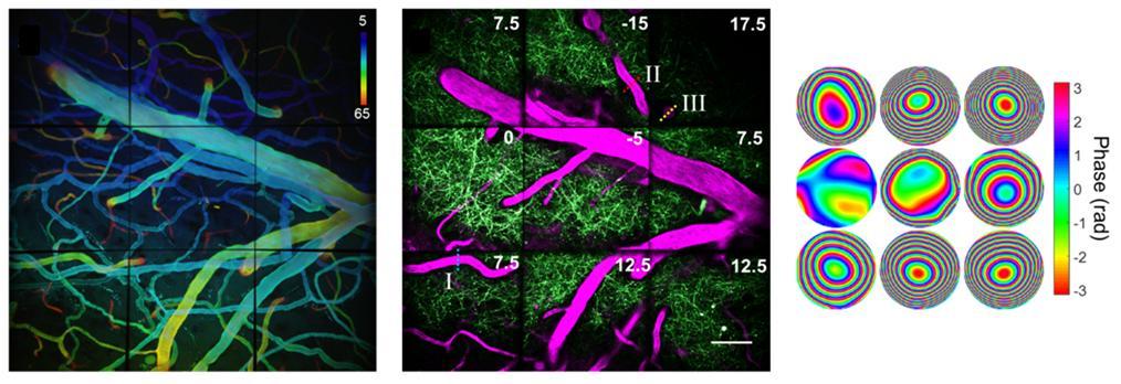 살아있는 쥐의 뇌 속 혈관을 순차적으로 이미징했다. 오른쪽은 여기에 사용된 파면 모양이다.