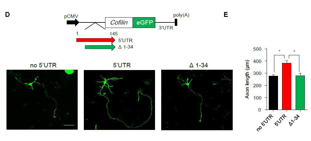 생쥐의 뇌 속에 있는 해마 신경세포로 실험하면서 관찰한 모습이다. 뇌신경세포의 축삭돌기 발달은 IRES 기작을 이용한 코필린의 발현 양에 따라 크게 차이난다. 이 현상은 공초점현미경으로 관찰한 후 그 길이를 측정했다.