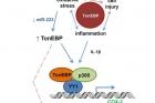 그림3_간암-발생-과정에서-톤이비피-유전자의-역할.jpg