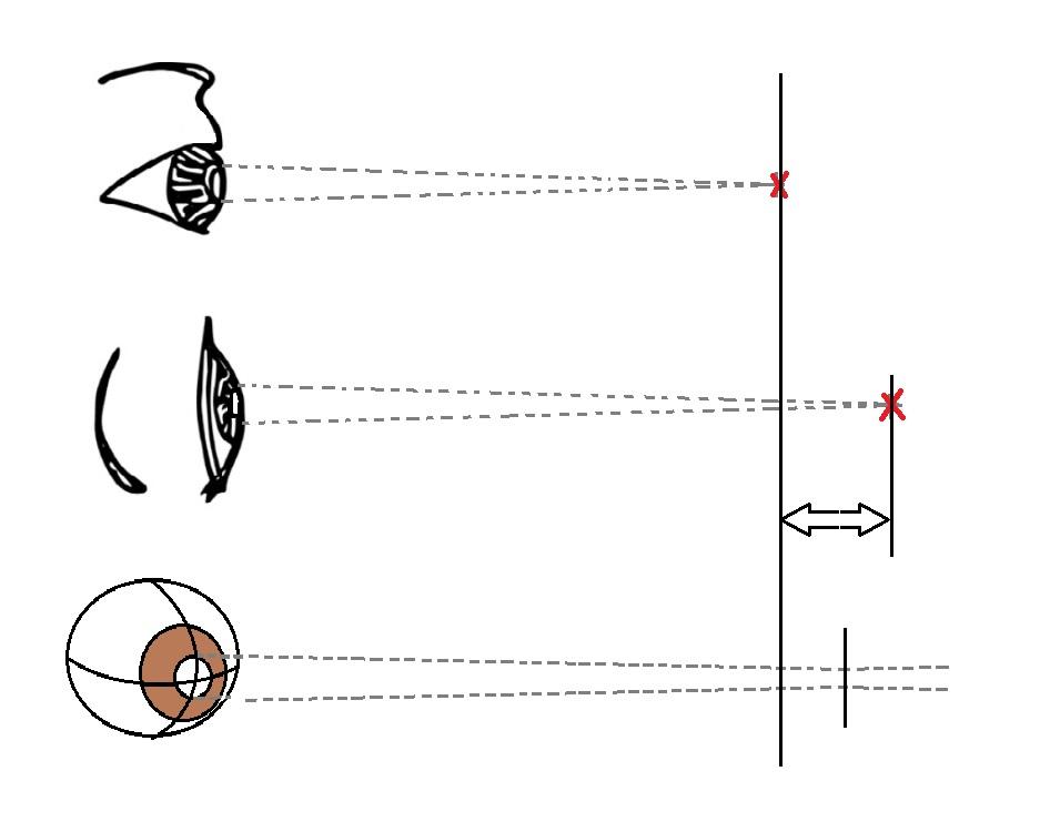 눈의 초점이 맞지 않는 난시 현상은, 각막의 곡률이 축에 따라 균일하지 않아서 생긴다.