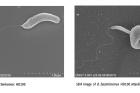 벨로와-벨로가-그람음성균을-공격하는-모습.jpg