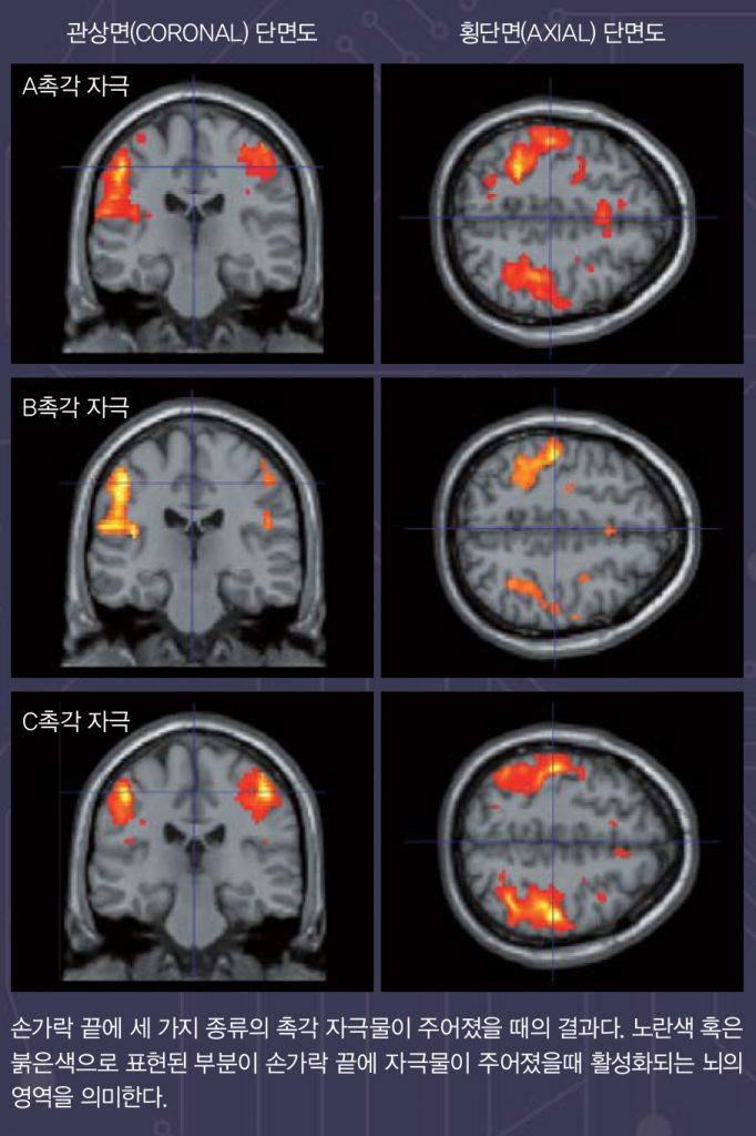 fMRI 사진.