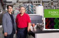 뇌 신경망 구조 만드는 분자 발견… 신경질환 원인 찾는다!