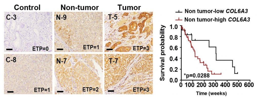 ETP expression and survival rate in liver tissue from HCC patients.