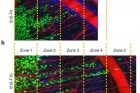 Migration-of-non-metastatic-and-metastatic-cells-from-live-tumors-in-mouse-skin.jpg