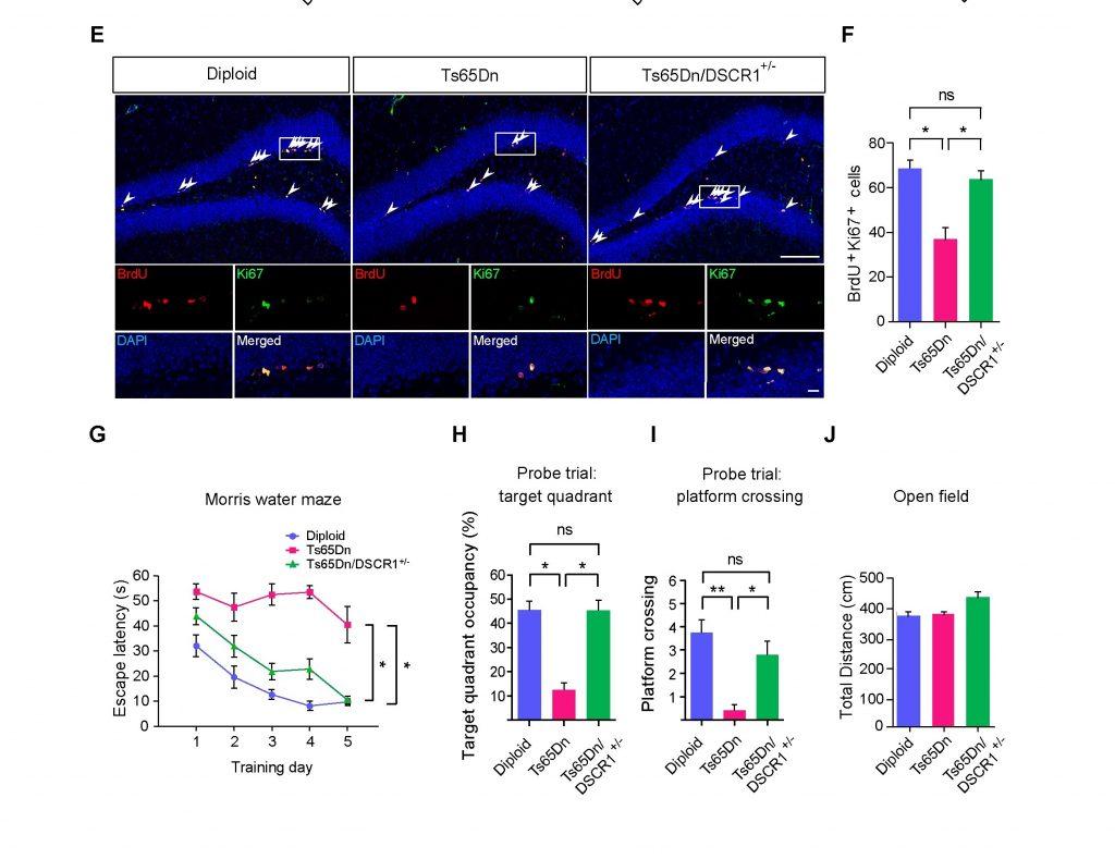 [그림1] 다운 증후군 모델 쥐에서 나타나는 성체 신경발생 결손 및 학습
