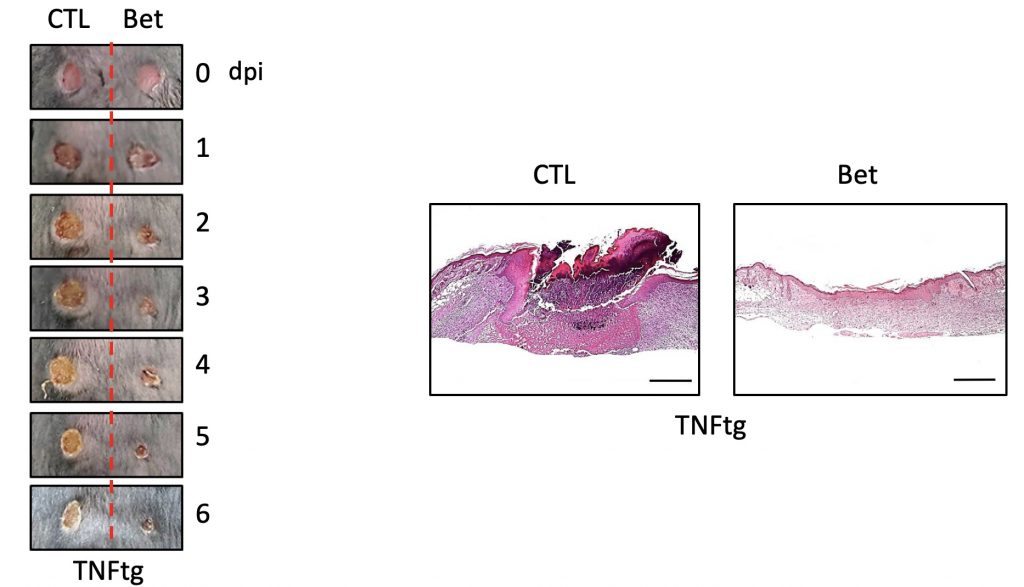 연구사진국부적-SREBP의-억제가-만성-염증-질환을-갖는-쥐의-상처-치유를-가속화함.