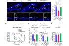 그림1-다운-증후군-모델-쥐에서-나타나는-성체-신경발생-결손-및-학습.jpg