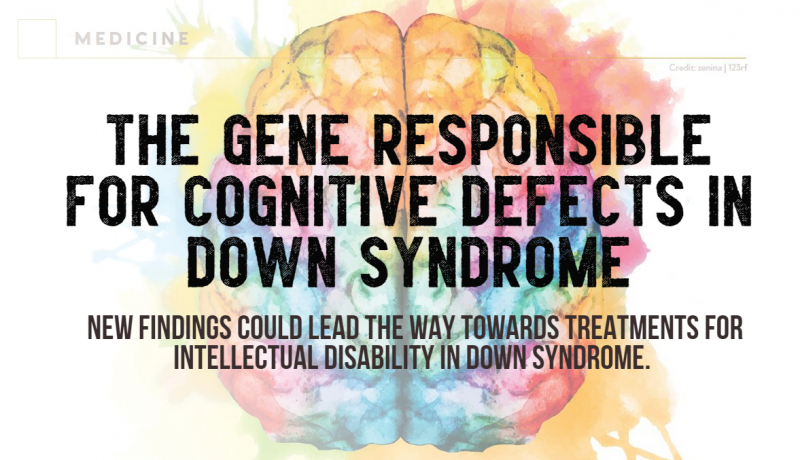 """""""New findings could lead the way towards treatments for intellectual disability in Down syndrome."""""""